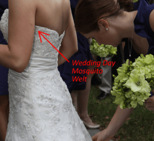 Bug Bite on Bride